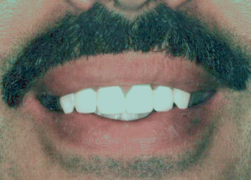 Replacement of Old Crowns With New Crowns – After