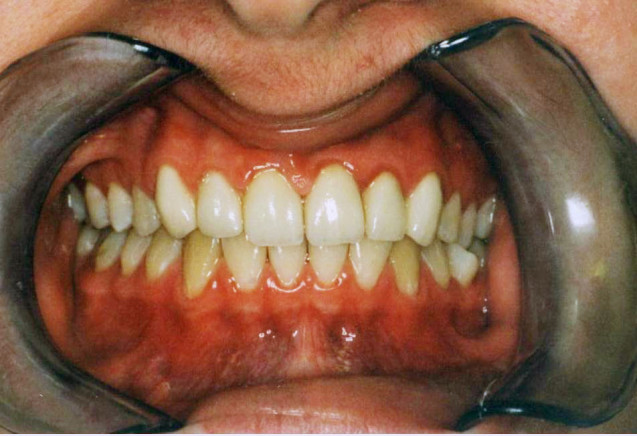 Reconstruction of Decayed Teeth with Crowns – After