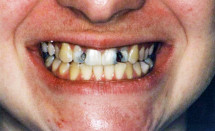 Reconstruction of Decayed Teeth with Crowns – Before