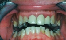 Replacement of Old Crowns With New Crowns – Before